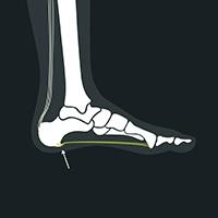 hälsporre under foten